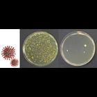 スーパー次亜水によるウイルス・細菌の抑制のご提案