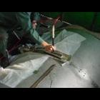 肉盛り溶接技術(部分めっき補修)